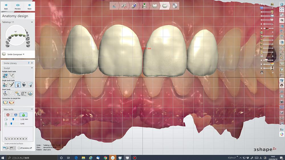スライド写真と重ね合わせたシミュレーション(トリオスケース)
