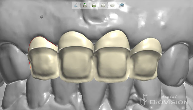 Half Layered Zirconia Ceramic Crowns