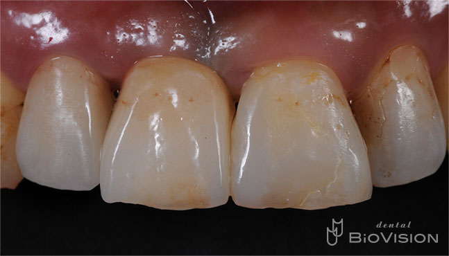 Layered Zirconia Ceramic with ASC Abutment