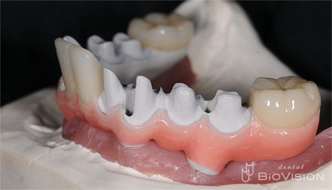 Pekkton Substructure with Pink Hybrid Resin & Individual Press Crowns