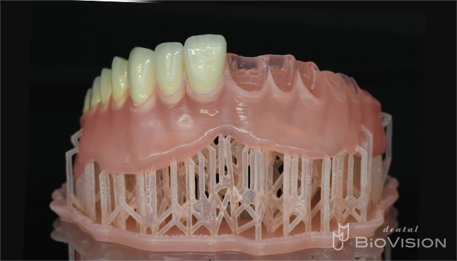 Maxillary metal plate full denture