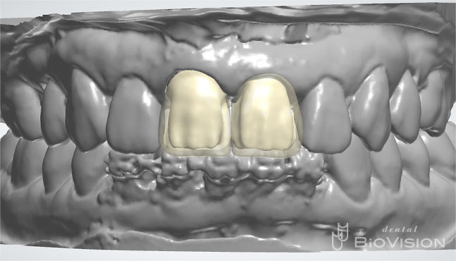 Layered Zirconia Ceramic Cr & Screw Retained Zirconia Ceramic