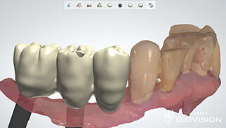 Screw Retained Full Anatomic Zirconia Br