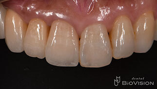 Layered Zirconia Ceramic Crowns