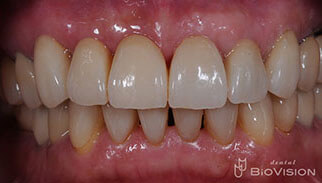 Layered Zirconia Ceramic Bridge