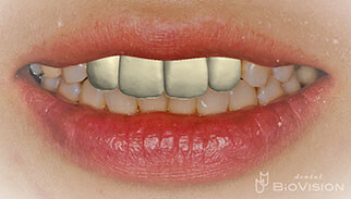 Half Layered Press Ceramic Crowns