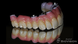 Screw Retained Monolithic Zirconia Br with Pink Porcelain