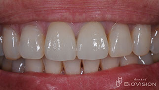 Layered Zirconia Ceramic Crowns by Intra Oral Scanner