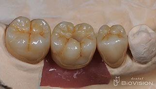 Full Anatomic Zirconia Crowns & Screw Retained Full Zirconia