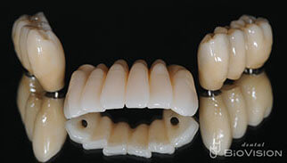 3segments Screw Retained Monolithic Zirconia Bridge